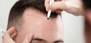 Ağrısız saç ekim mümkün mü?